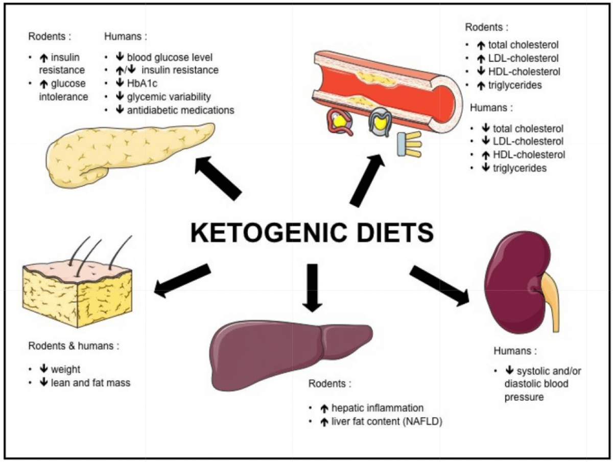 The effect of a Keto Diet on Metabolic Syndrome