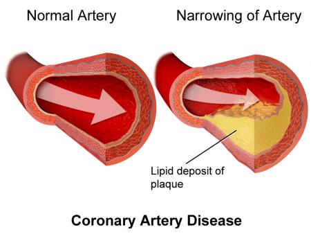 Cholesterol in artery