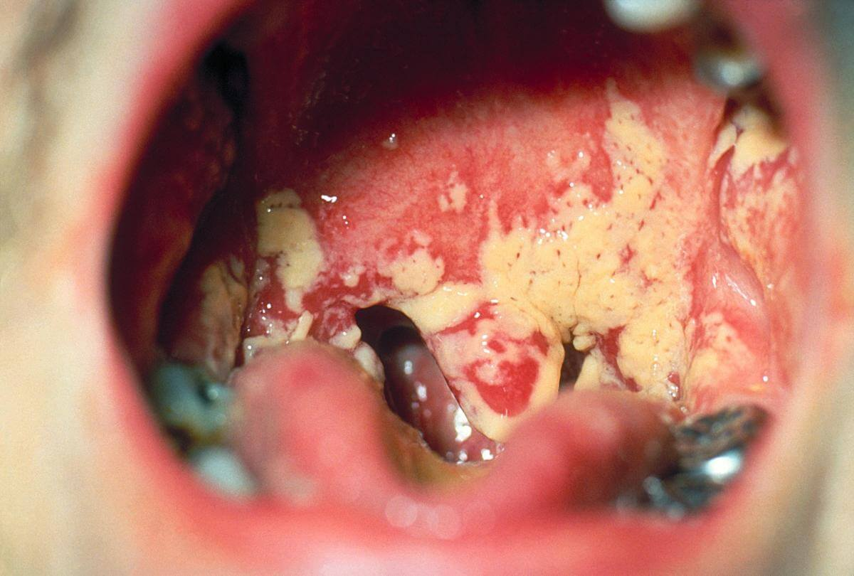 Throat with oral Candida