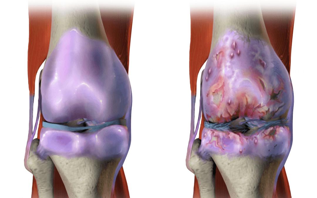 osteoarthritis.png