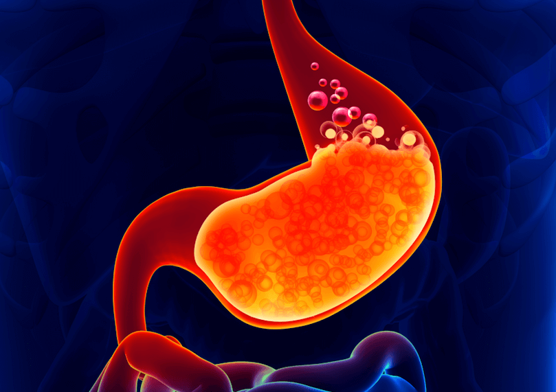 Acid Reflux, Heartburn, Indigestion – Natural Treatment