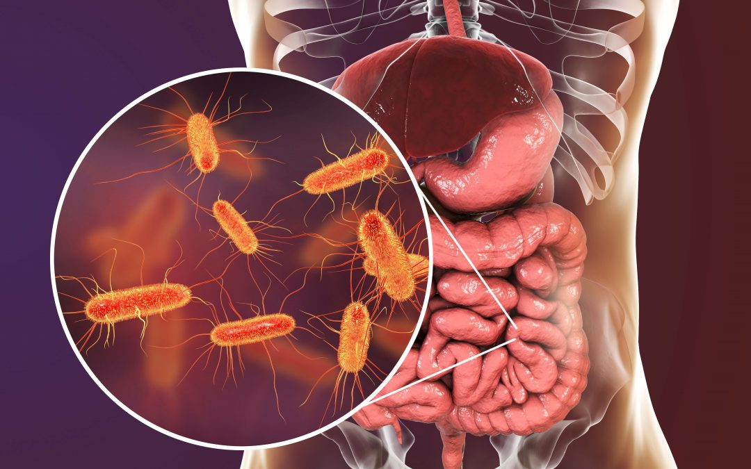 Leaky Gut Syndrome – Causes and Natural Solutions