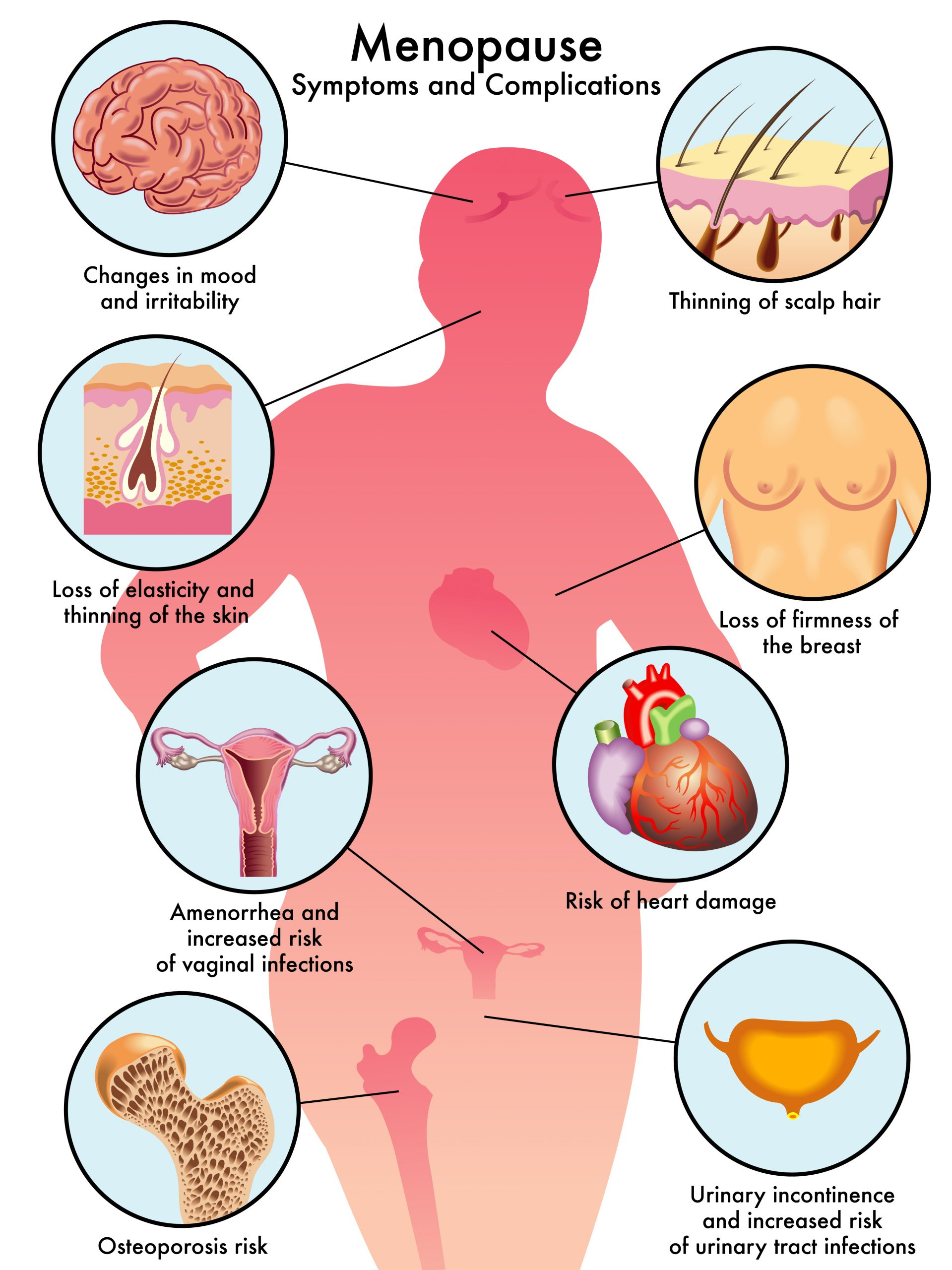 menopause symptoms and complications infographic
